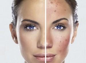 Tratamiento pigmentación
